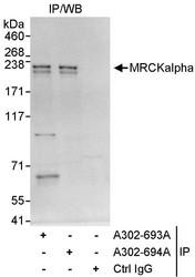 NBP1-46823 - CDC42BPA
