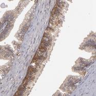 NBP1-84782 - ABCC4 / MRP4