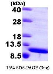 NBP1-44482 - S100A8 / Calgranulin-A / MRP8