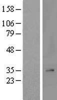 NBL1-13243 - MRPL2 Lysate