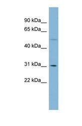NBP1-54657 - MRPL28