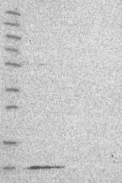 NBP1-92139 - MRPL36