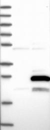 NBP1-85663 - MRPL47