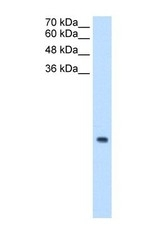 NBP1-54647 - MRPS12