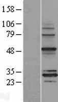 NBL1-13289 - MRPS18B Lysate