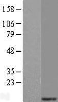 NBL1-13292 - MRPS21 Lysate