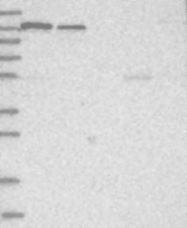 NBP1-84965 - MSH3
