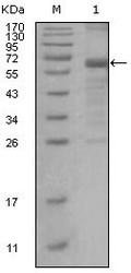 NBP1-47375 - MSH6