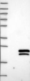 NBP1-86594 - MSRB2