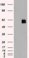 NBP1-48017 - STK3