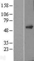 NBL1-16754 - MTAC2D1 Lysate