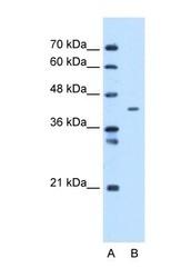 NBP1-69285 - MTCH1