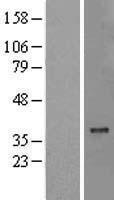 NBL1-13354 - MTCH2 Lysate