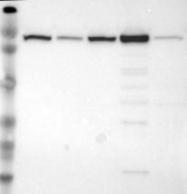 NBP1-82612 - MTHFD1