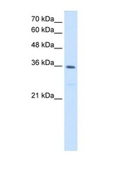 NBP1-54655 - MTHFD2