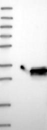 NBP1-83161 - MTHFS
