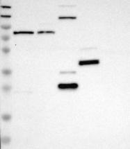 NBP1-86113 - Myotubularin / MTM1