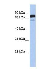 NBP1-54988 - MTMR12
