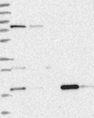 NBP1-85933 - MTO1