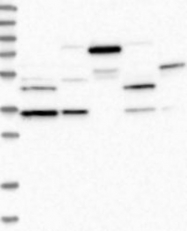 NBP1-86596 - Methionine Synthase Reductase / MSR
