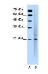 NBP1-60046 - CD227 / Mucin-1 / MUC1