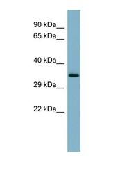 NBP1-59826 - Mucin-15