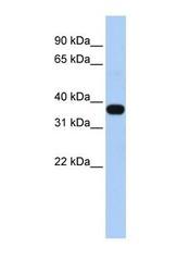 NBP1-59068 - MUL1 / RNF218