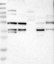 NBP1-88488 - MUL1 / RNF218