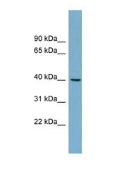 NBP1-54939 - TRIM63 / MURF1 / RNF28