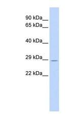 NBP1-55082 - TRIM55 / MURF2 / RNF29