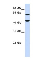 NBP1-52899 - TRIM54 / MURF3 / RNF30
