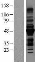 NBL1-17305 - MURF3 Lysate