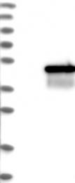 NBP1-82824 - Mevalonate kinase