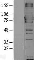 NBL1-13404 - MX1 Lysate