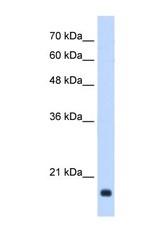NBP1-58997 - GADD45B