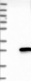 NBP1-81016 - MYL7
