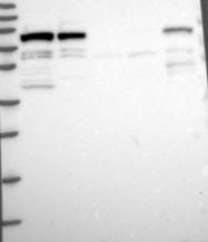 NBP1-92161 - MYST2