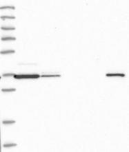 NBP1-92094 - H2AFY2 / MACROH2A2