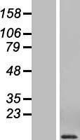 NBL1-08856 - Macrophage Inflammatory Protein 1 alpha Lysate