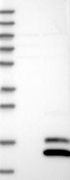 NBP1-87736 - SCGB2A1 / Mammaglobin B