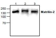 NBP1-45694 - Matrilin-2