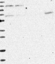 NBP1-87860 - Matrin-3