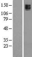NBL1-12189 - Maxi Potassium channel alpha Lysate