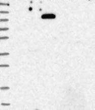 NBP1-89628 - Meckelin