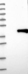 NBP1-84983 - Melatonin Receptor 1B