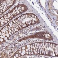 NBP1-90088 - Membralin