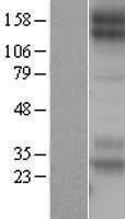 NBL1-13017 - Met (c-Met) Lysate