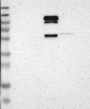 NBP1-90945 - Proenkephalin-A (PENK)