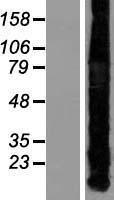NBL1-13343 - Metallothionein-1A Lysate