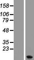 NBL1-13344 - Metallothionein-1F Lysate